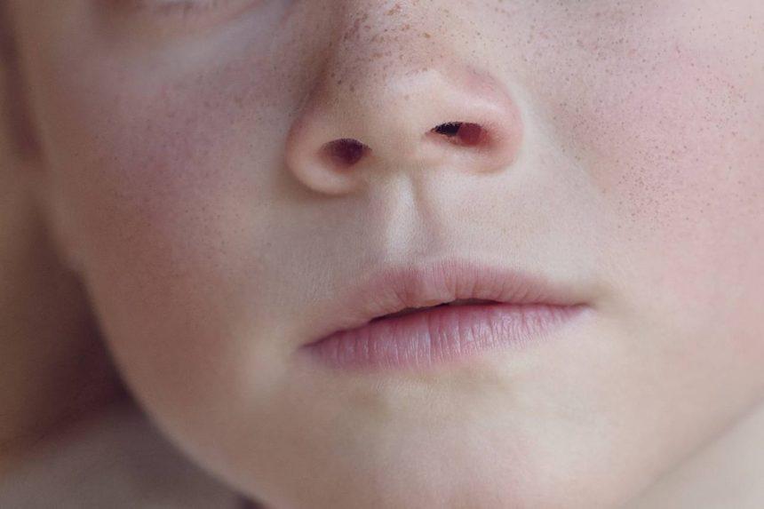 Was tun bei Nasenpolypen?
